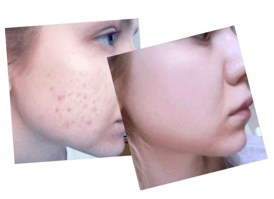 olena acne, olena before and after, pop the pimple