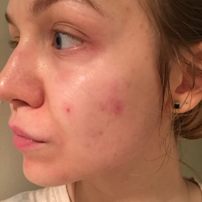 pop the pimple, adult acne, argan oil, acne-prone skin, pimples